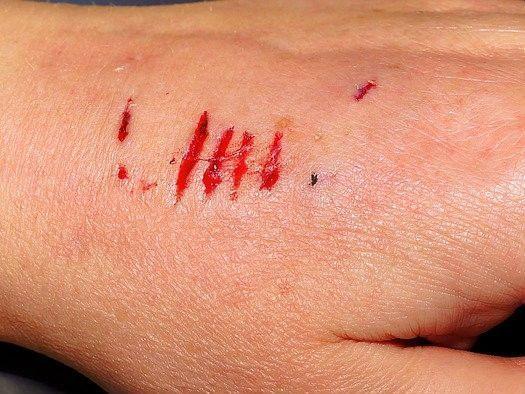 Heeft u letselschade door een hondenbeet? Dan kan dat ernstige littekens tot gevolg hebben.