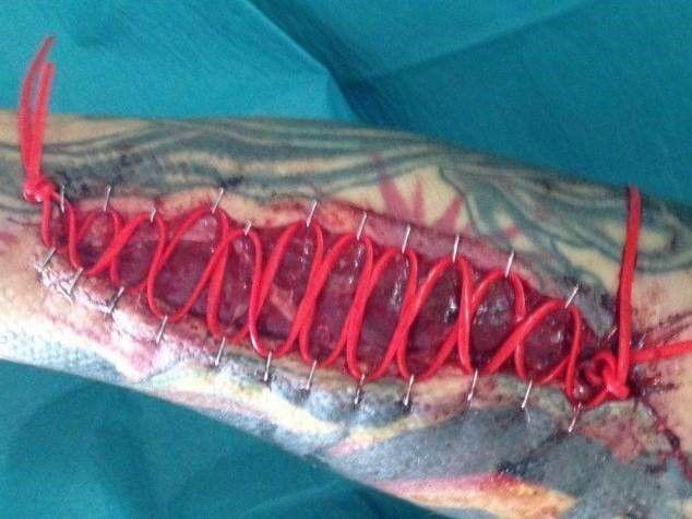 Arm verwoest door hond: schadeclaim tegen politie