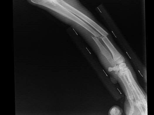 röntgenfoto na bedrijfsongeval